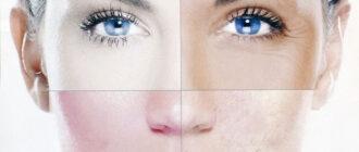 Как правильно определить тип кожи лица?